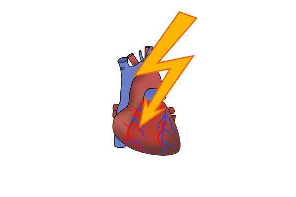 Nach Wettkämpfen können Herzinfarktwerte erhöht sein – ohne dass ein Infarkt vorliegt 1